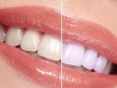 做冷光美白好么 牙齿能变白到什么程度