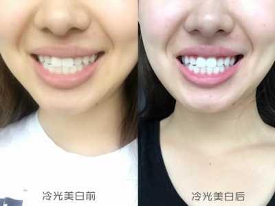美白牙齿膜 体验报告〉我终于去做了冷光美白