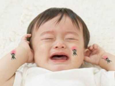 小儿荨麻疹的治疗 取决于孩子的体质改变