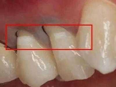白醋可以洗牙吗 使用这个土办法彻底祛除牙医不会告诉你的秘密