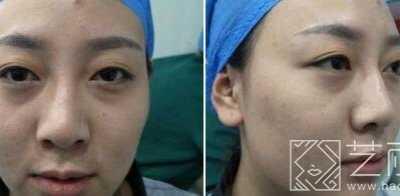 济南鹏爱整形美容医院怎么样 小仙女分享双眼皮手术经历